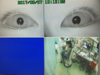 眼球運動検査機器(めまいの検査装置)